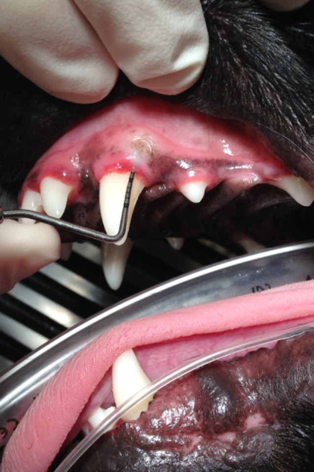 Dental Tooth Png