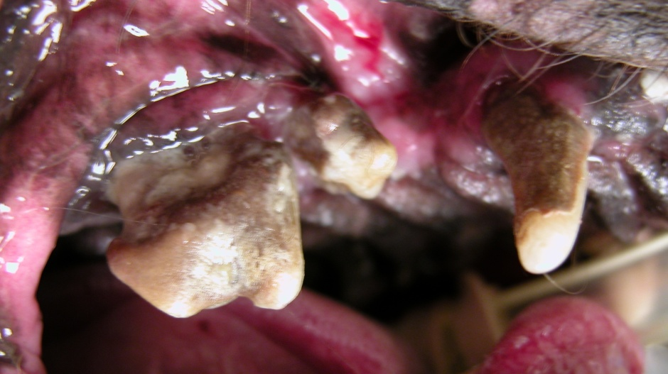 In this case of advanced periodontitis, there is major decay, attachment loss, and infection.