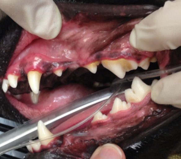 Early gingivitis is characterized by tartar build-up and inflammation at the gum line—the classic red line separating the crowns from the rest of the gum.